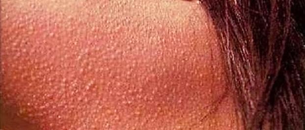 A gluténérzékenység tüneteként jelentkező bőrelváltozás